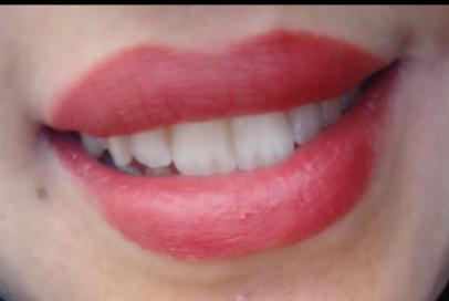 boca-vermelha